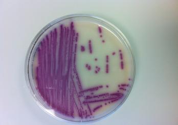 La photo représente une boîte de petri avec un milieu de culture Salmonella spp