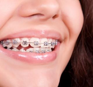 Orthodontie - Kieferorthopädie