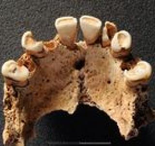 Dents usées et cariées, Fétigny