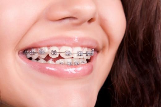 Des consultations orthodontiques