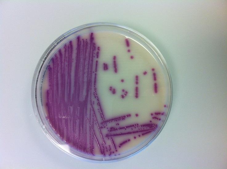 Das Bild zeigt eine Petrischale mit einer Kultur von Salmonella spp
